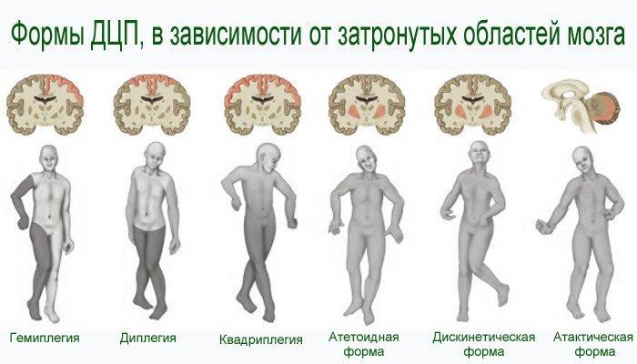 paralizie cerebrală cu insuficiență vizuală)
